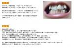 (写真)前歯の矯正(セラミック)の治療について