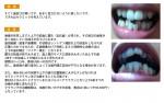 (写真)歯並びが悪い・・・セラミックで治すと?