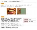 (写真)出っ歯の悩み…裏側矯正?表側矯正?