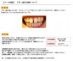(写真)すきっ歯の治療について ラミネートべニアで可能?