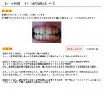 (写真)すきっ歯の治療でレジンはできるの?
