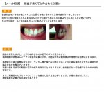 (写真)前歯が長くてかみ合わせが悪い