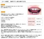 (写真)前歯のすきっ歯を治療する方法