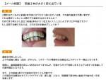 (写真) 前歯2本がサイズが大きく、前に出ている 治療法は?