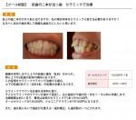 (写真) 前歯の出っ歯 セラミッククラウンにするなら何本?