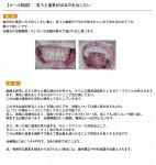 (写真)笑うと歯茎がでるのを治したい