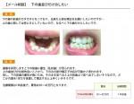 (写真)下の歯の前歯だけ歯並びが悪い、部分矯正をしたいが