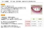 (写真)すきっ歯、口元の歪み、歯が大きさと形…トータル的な治療は