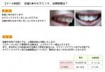(写真)前歯2本のセラミッククラウンにしたい、治療期間は?