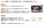 (写真)上下の歯並びの悪さを出来るだけ安く治したい