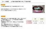 (写真) 上の歯の前歯の隣の1本と下の歯の矯正