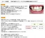 (写真)何本の歯をセラミックにすれば綺麗な歯並びになる?