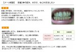 (写真)前歯2本の歪み、大きさ、ねじれを治したい