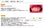(写真)前歯の歪み、叢生について