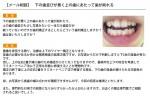 (写真)どういう歯列矯正になりますか?抜歯はあり?