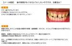【メール相談】 歯の隙間がなくなるようにしたいのですが、治療法は?