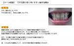 (写真)できる限り安く早いすきっ歯の治療は
