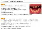 (写真)乱杭歯とすきっ歯の矯正 抜歯は必要?