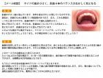 (写真)サイドの歯が小さく、前歯4本のバランスがおかしく気になる