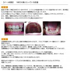 (写真)部分矯正か上下矯正か。顎関節症でも矯正は可能?