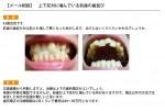 (写真)上下反対に噛んでいる前歯の歯並び