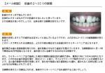 (写真)前歯の2~3ミリの隙間