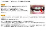 (写真)奥に引っ込んでいて歯茎が目立つ前歯