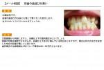 (写真)前歯の歯並びが悪い