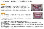 (写真) 下前歯4本をセラミックor矯正で治した場合