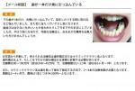 (写真)歯が一本だけ奥に引っ込んでいる