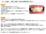 (写真)舌側から矯正した場合の期間を教えて欲しい