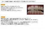 (写真)前歯が一本だけ出ていて口を閉じることができない