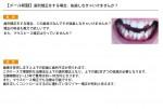 (写真)歯列矯正をする場合、抜歯しなきゃいけませんか?