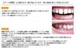 (写真)上の歯がすきっ歯で悩んでいます
