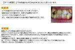 (写真)上下の前歯がガタガタなのを治したい