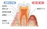 歯周病は感染症です。歯周病治療(その2)