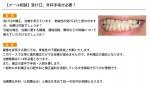 (写真)受け口の治療について