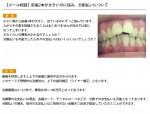 (写真)前歯2本が大きいのに悩み。分割払いについて