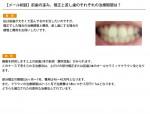 (写真)前歯の歪み、矯正と差し歯のそれぞれの治療期間は?