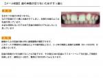 (写真)歯の本数が足りないためすきっ歯です
