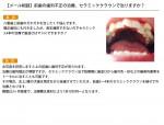 (写真)前歯の歯列不正の治療、セラミッククラウンで治りますか?