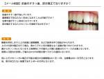 (写真)前歯のすきっ歯、部分矯正で治りますか?