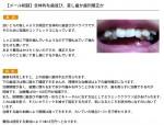 (写真)全体的な歯並び、差し歯か歯列矯正か