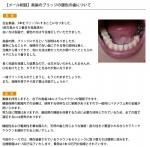 (写真)奥歯のブリッジの銀色の歯について
