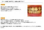 (写真)歯列不正、抜歯は必要ですか?