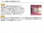 (写真)差し歯のねじれと変色について