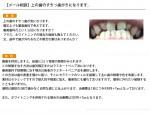 (写真)上の歯のすきっ歯について