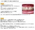 (写真)すきっ歯と出っ歯を治すには
