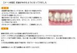 (写真)前歯がゆがむようになってきました