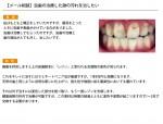 (写真)虫歯の治療した跡の汚れを治したい